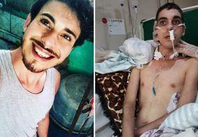 Ataque homofóbico violento em Pernambuco deixa jovem com sequelas