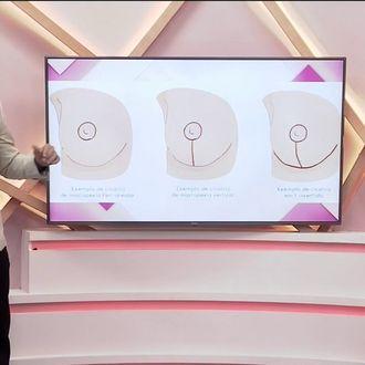 Beleza Plena: saiba mais sobre a mamoplastia periareolar- Com Você