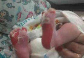 Após queimaduras, recém-nascido continua em tratamento em hospital de JP