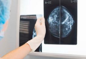 MPF e MPPB convocam pacientes que aguardam biópsias e início de tratamentos de câncer na PB