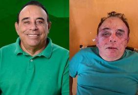 Preso suspeito do assalto que resultou em espancamento de prefeito na PB