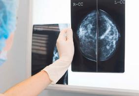Conheça os 5 tipos de câncer que mais matam no mundo e seus sintomas